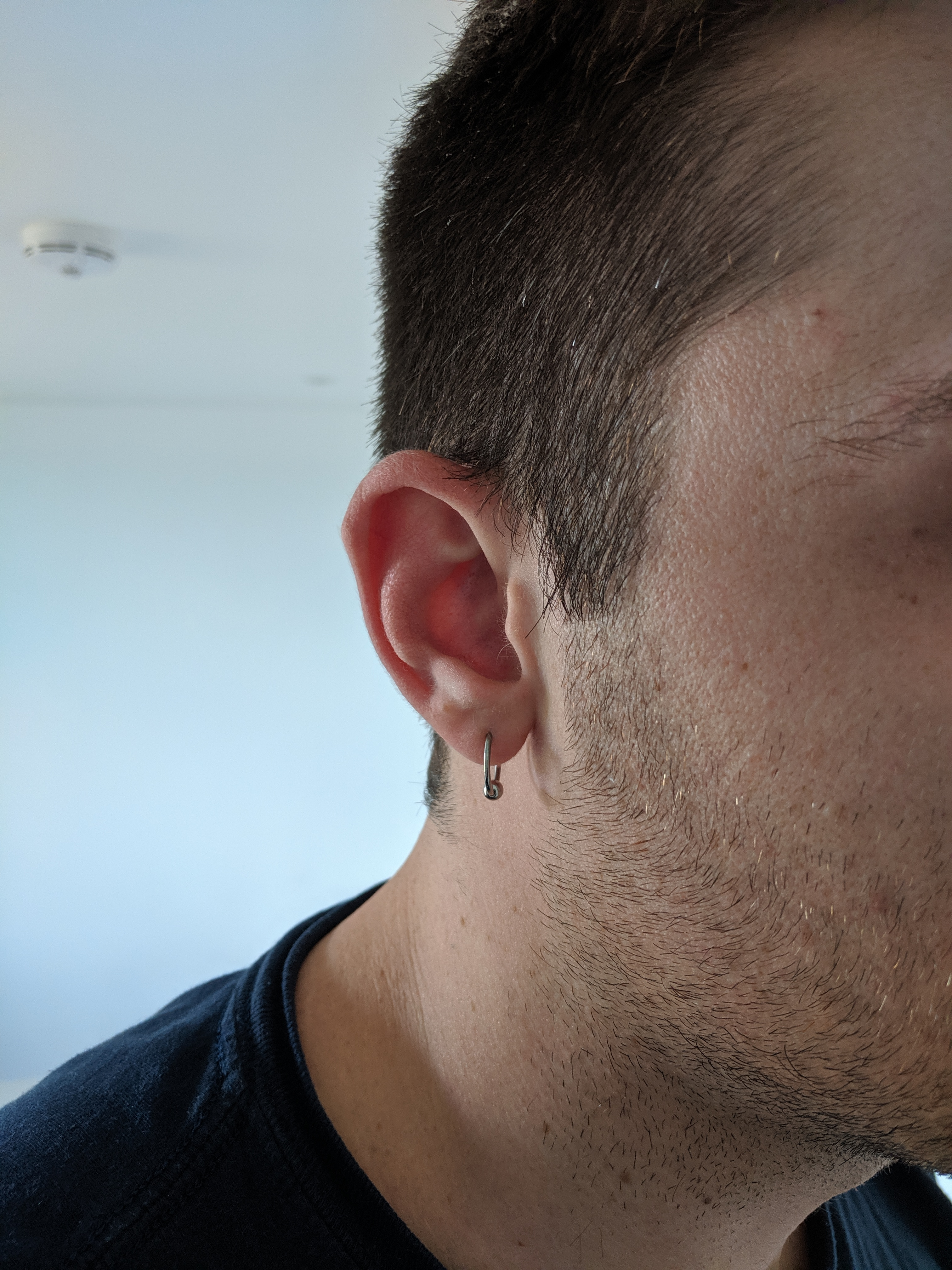 14G CBR in Earlobe